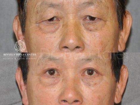 Asian Eyelid Procedure – Front