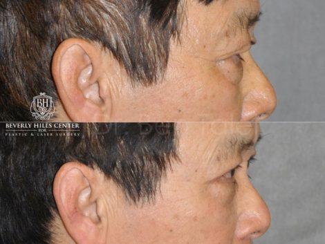Asian Eyelid Procedure – Right