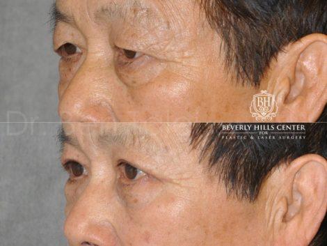 Asian Eyelid Procedure – Left
