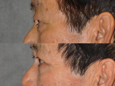Asian Eyelid Procedure – Left