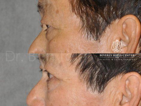 Eyelid Rejuvenation - Left