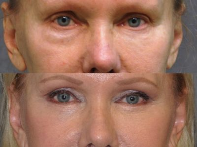 Lower Eyelid Tightening - Front