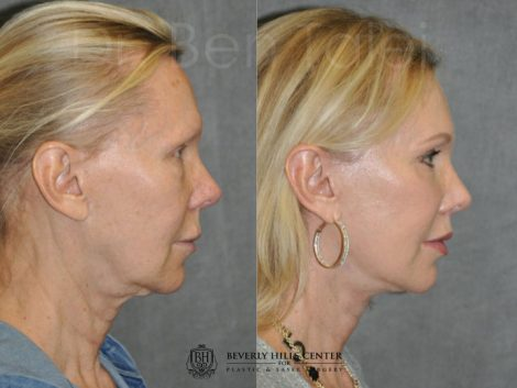Lip Lift - Right Side