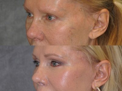 Lower Eyelid Tightening - Left Side