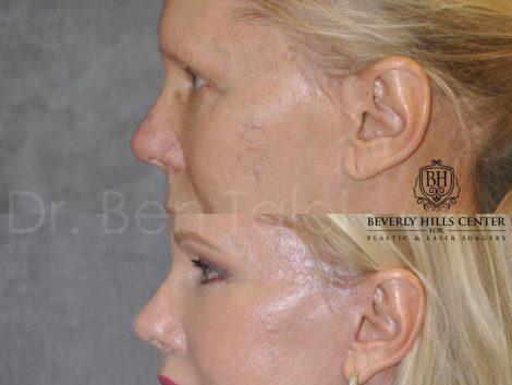 Lower Eyelid Tightening - Left Side
