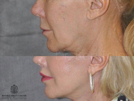 Lip Lift - Close Up