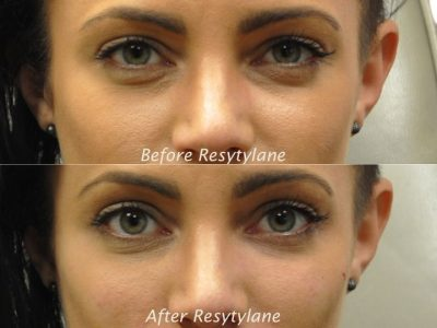 Restylane - Front