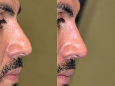 Non Surgical, Liquid Rhinoplasty / Nose Job