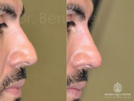 Non Surgical, Liquid Rhinoplasty / Nose Job