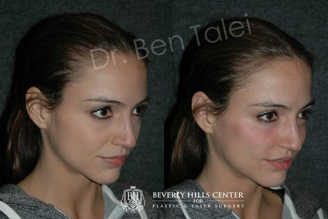 Cheek Highlights - Right Side