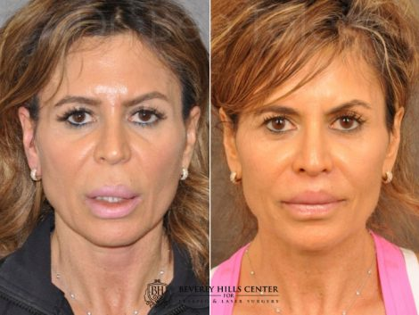 Modified Upper Lip Lift for Silicone Correction – Front