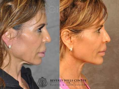 Modified Upper Lip Lift for Silicone Correction – Right Side