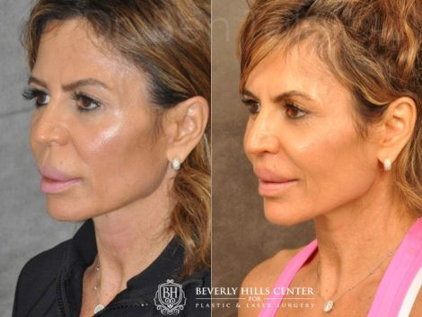 Modified Upper Lip Lift for Silicone Correction – Left Side