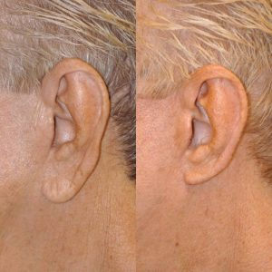 Ear Lobe Reduction