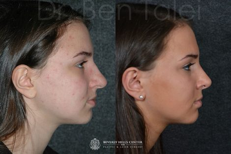 Minimally Invasive (Closed) Rhinoplasty - Right Side