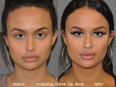 Neck MicroLiposuction with subtle UnderEye Refresh, Cheek Contour, Chin Projection, and Lip Enhancement - Front