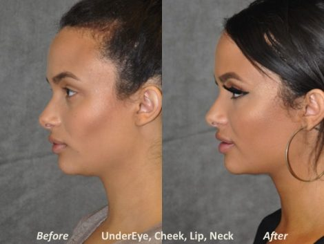 Neck MicroLiposuction with subtle UnderEye Refresh, Cheek Contour, Chin Projection, and Lip Enhancement - Left Side