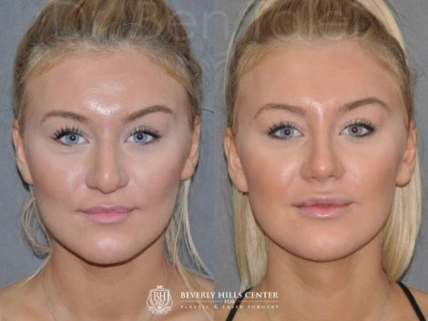 Minimally Invasive (Closed) REVISION Rhinoplasty - Front