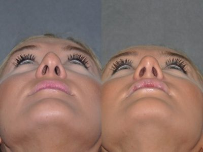 Minimally Invasive (Closed) REVISION Rhinoplasty