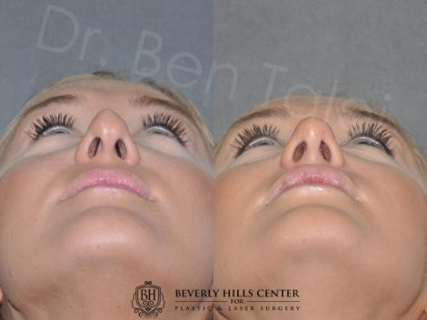 Minimally Invasive (Closed) Rhinoplasty and Lip Injections - Front