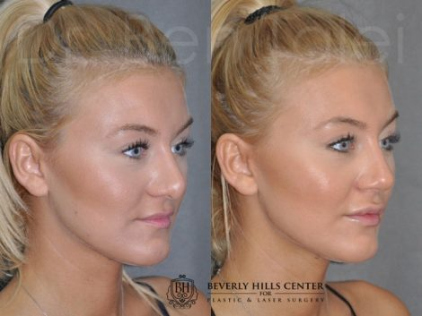 Minimally Invasive (Closed) Rhinoplasty and Lip Injections - Right Side