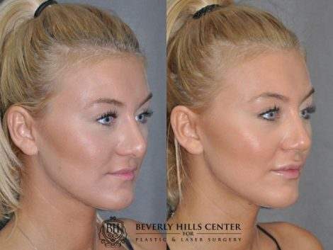 Minimally Invasive (Closed) REVISION Rhinoplasty - Right Side