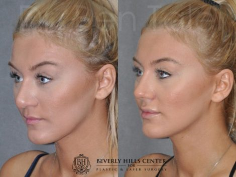 Minimally Invasive (Closed) Rhinoplasty and Lip Injections - Left Side