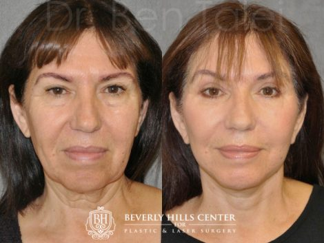 AuraLyft with Eyelid Rejuvenation - Front