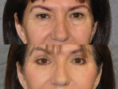 AuraLyft with Eyelid Rejuvenation - Front