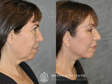 AuraLyft with Eyelid Rejuvenation - Right Side