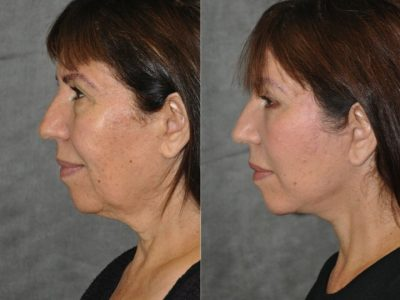 AuraLyft with Eyelid Rejuvenation - Left Side