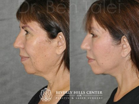 AuraLyft with Eyelid Rejuvenation- Left Side