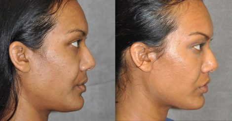 Profound MicroLift with Tri-L Treatment – Right Side