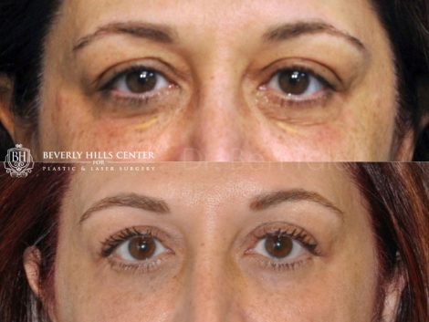 Xanthelasma Excision, Upper Eyelid and Lower Eyelid Tightening with Fat Transposition. - Front