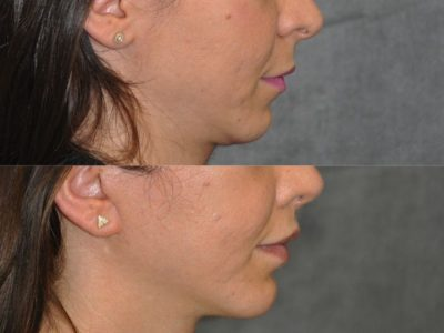 Small Chin Implant - Right Side