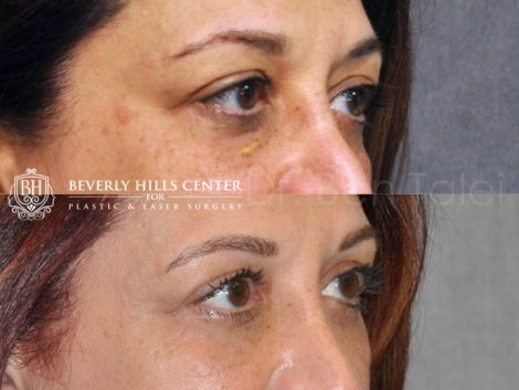 Xanthelasma Excision, Upper Eyelid and Lower Eyelid Tightening with Fat Transposition. - Right Side