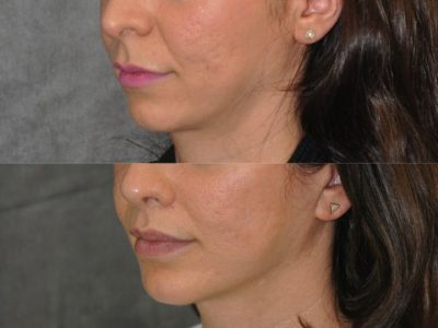 Small Chin Implant - Left Side