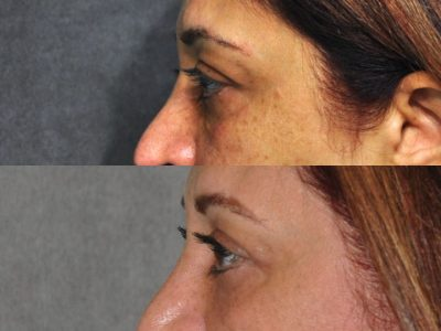 Xanthelasma Excision, Upper Eyelid and Lower Eyelid Tightening with Fat Transposition. - Left Side