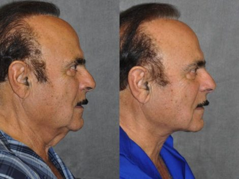 Direct Neck Lift - Right Side