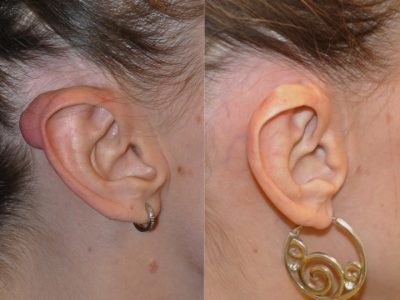 Ear Keloid Removal