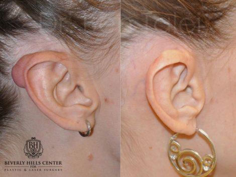 Ear Keloid Removal