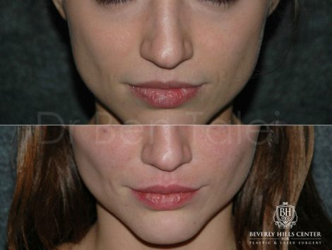 Lip Enhancement - Front