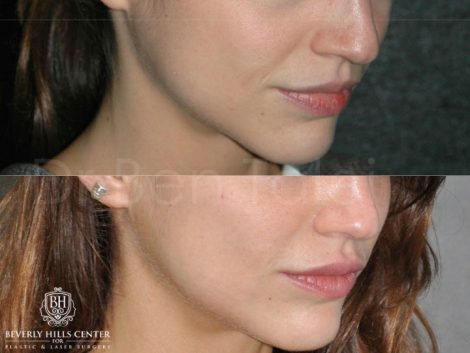 Lip Enhancement - Right Side