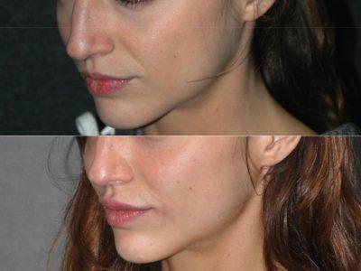 Lip Enhancement - Left Side