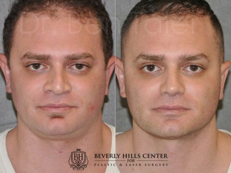 Revision Rhinoplasty & Profound MicroLift – Front