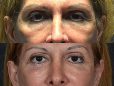 Lower Eyelid Rejuvenation  - Front