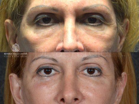 Lower Eyelid Rejuvenation  - Front
