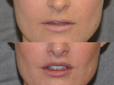 Lip Lift - Front
