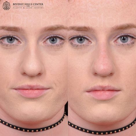 Non surgical rhinoplasty - Front