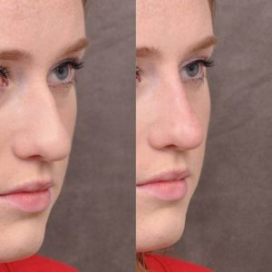 Non surgical rhinoplasty - Right Side